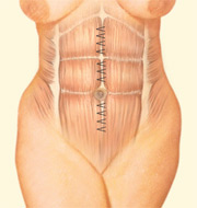 Tummy Tuck, Interior Incision